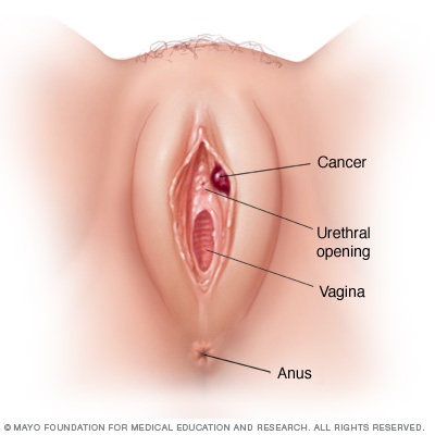 vulvar cancer disease reference guide - drugs, Human Body