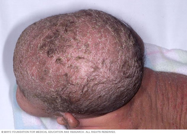 Cradle cap Disease Reference Guide - Drugs.com