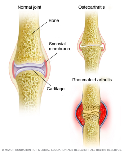 psoriasis and joint pain