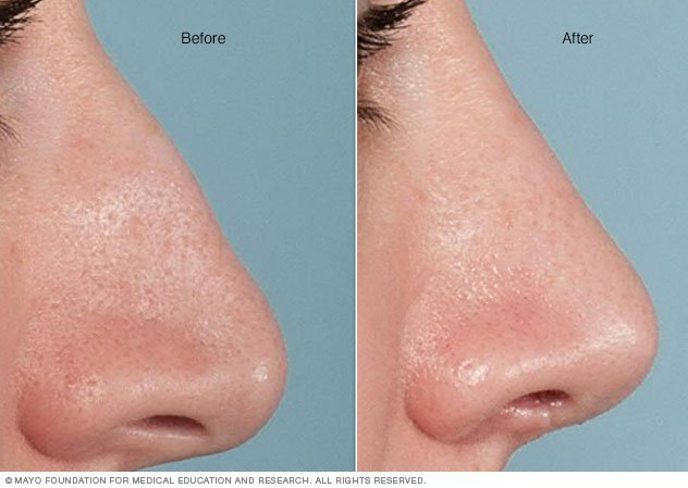 Broken Noses Before And After at Left a Woman's Nose Before