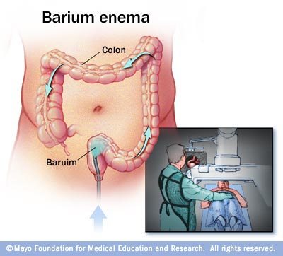 Barium Enema Drugs Com