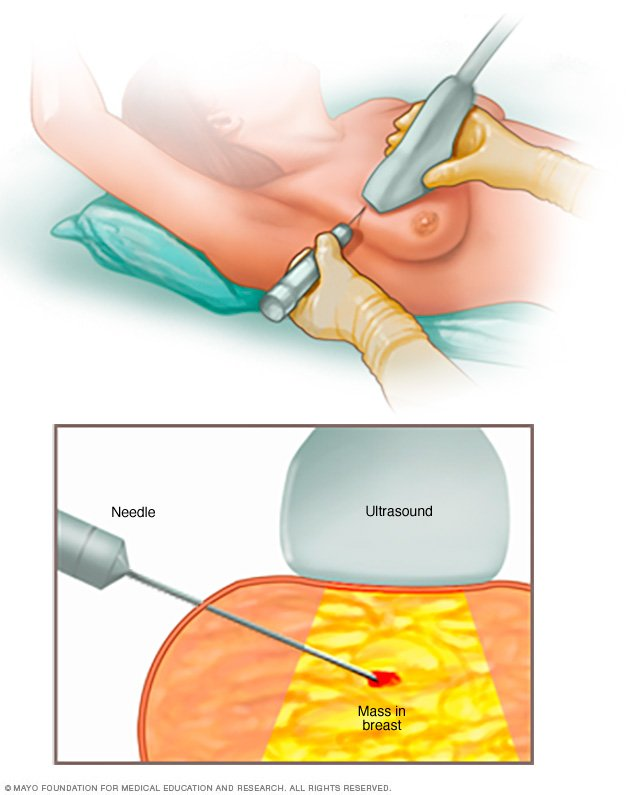 ATEC Breast Biopsy and Excision System - HOLOGIC