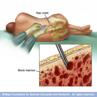 bone marrow biopsy and aspiration - drugs, Skeleton