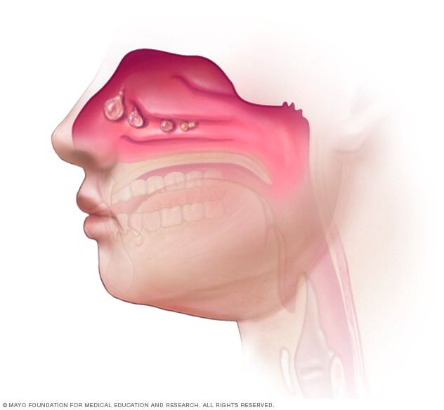 Nasal Polyps Disease Reference Guide Drugs Com