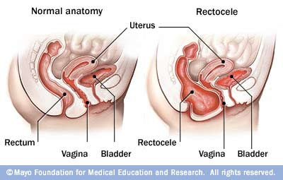 Hard lumb between vagina and rectum
