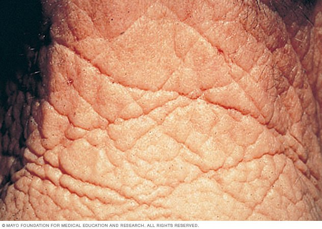 Dry Face Skin Symptoms And Remedy |Wrinkly Skin